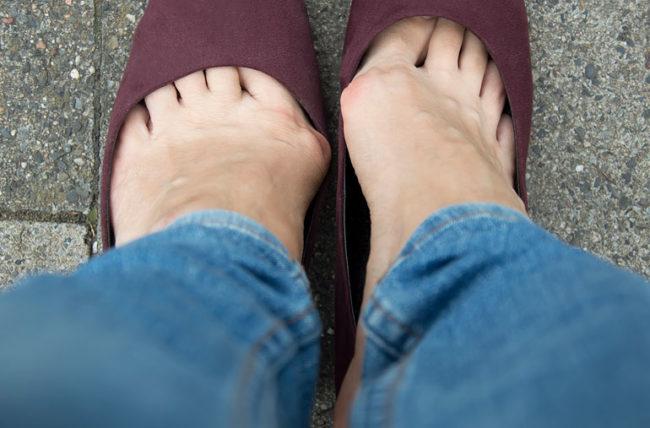 """Безплатни профилактични прегледи за кокалчета на краката през юли в """"Пълмед"""""""