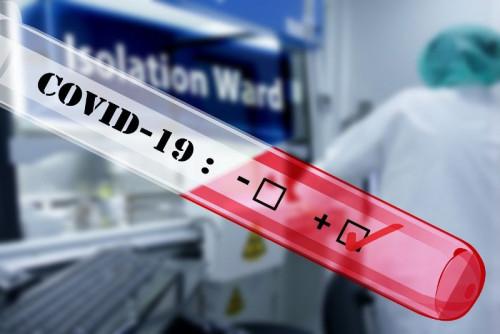 Пробовземане за стандартен PCR тест за коронавирус