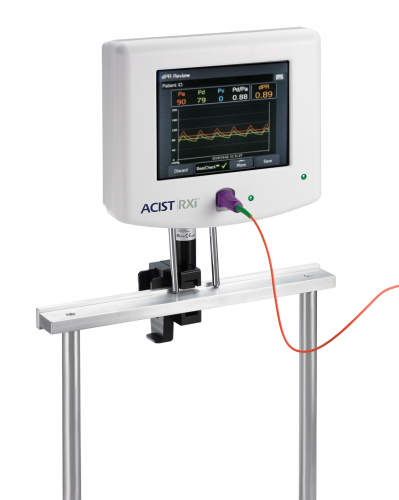 """УМБАЛ """"Пълмед"""" с последно поколение апаратура за оценка на коронарната болест на сърцето"""